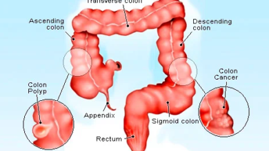 Photo of Cancer of the Intestine: Reduce Your Consumption of those 3 Things