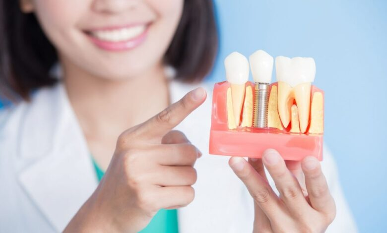 Photo of Oral Health Experts Say Dental Implants are a Unique Tooth Replacement Option to Maintain a Radiant Smile