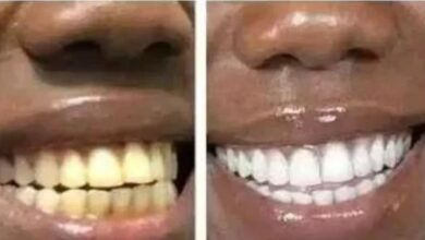 Photo of How you can brighten your teeth in few minutes