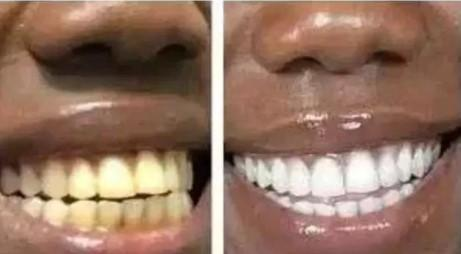 How you can brighten your teeth in few minutes