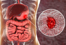 Photo of Understanding Stomach Ulcers and how to handle it