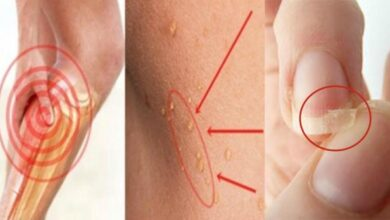 Photo of 5 Warning Signs of Nutritional Deficiency You Can't Miss