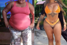 Photo of Formerly Obese Woman Is Totally Unrecognizable In New Photos
