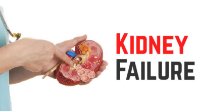 Photo of Causes of kidney disease that you must be aware of henceforth