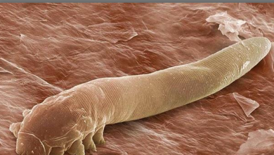 Photo of Face mites: The creatures that lives in your beautiful face