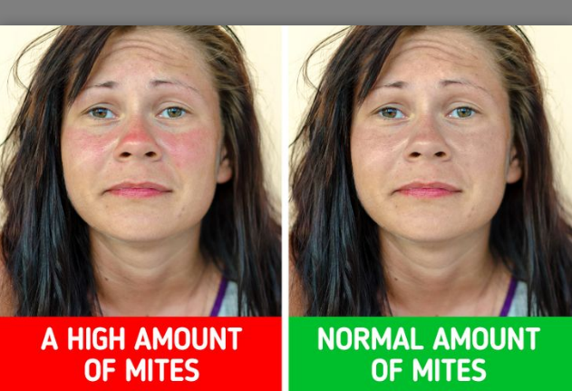 face mites acne, how to get rid of face mites, visible face mites, pictures of face mites, face mites size, face mites under microscope, pictures of demodex mites on face, signs demodex mites are dying