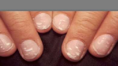Photo of White spots on nails: This is why there are white spots on your nails