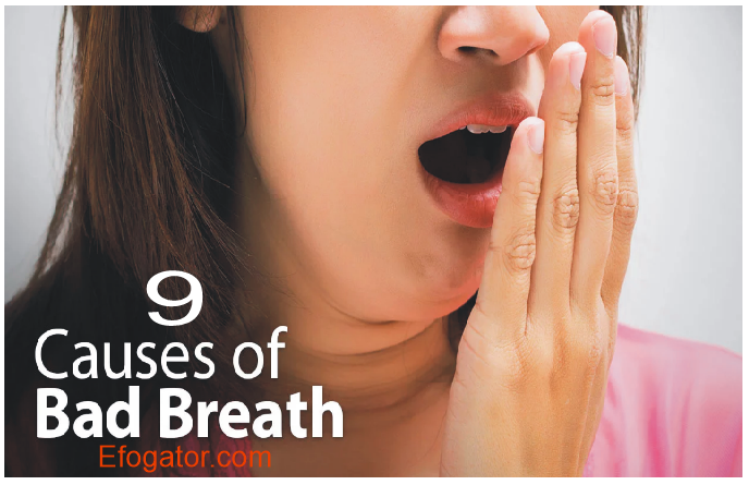 Causes of Mouth Odor