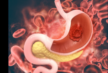 Photo of Types of ulcers – 5 Major types of ulcers and their symptoms