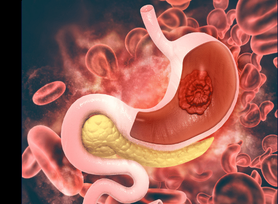 Types of ulcers - Major types of ulcers and their symptoms
