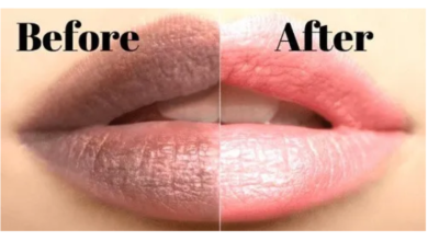 Photo of Make your lips soft and pink with these top 4 natural foods
