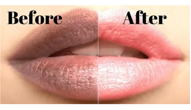 make your lips soft